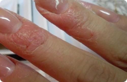 Аллергия на гель лак