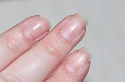 Ногти после гель лака